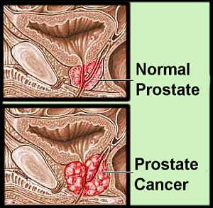 prostatecancercompare